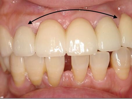歯の被せもの セラミック 症例