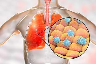Coronavirus Attacking Lungs.jpg