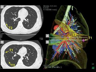 Cientistas de dados desenvolvem algoritmos para detectar câncer de pulmão.