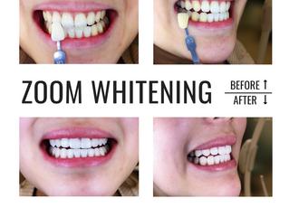 Philips Zoom! Whitening