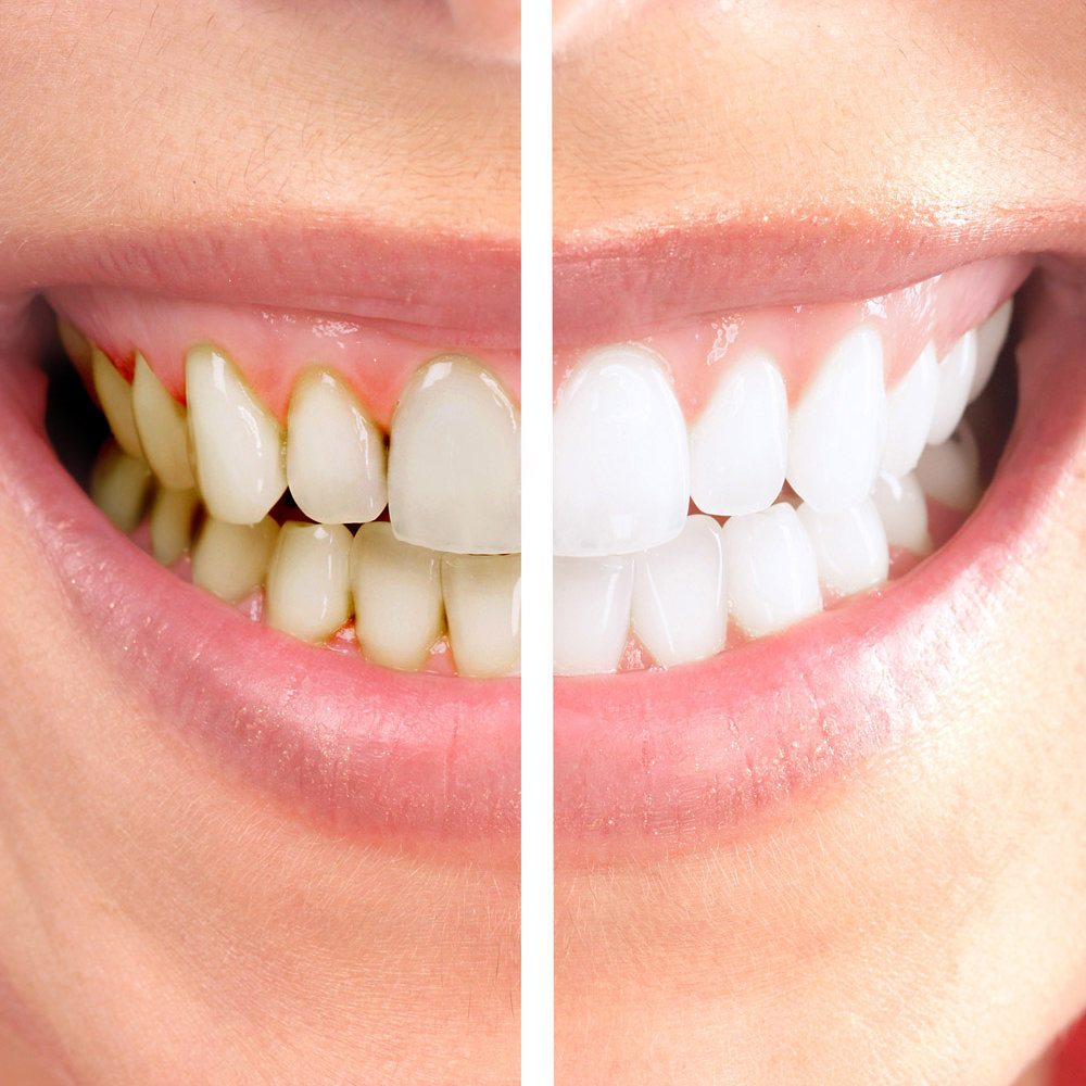 Tooth Whitening (in office)