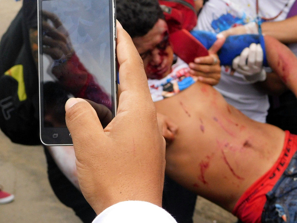 """Durante la """"Marcha de Las Flores"""" varias personas resultaron heridas tras ataques de paramilitares - Fotografía de Jairo Videa"""