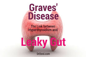 Graves' Disease and the Link Between Hyperthyroidism and Leaky Gut Syndrome