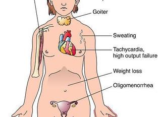 Graves Disease Info