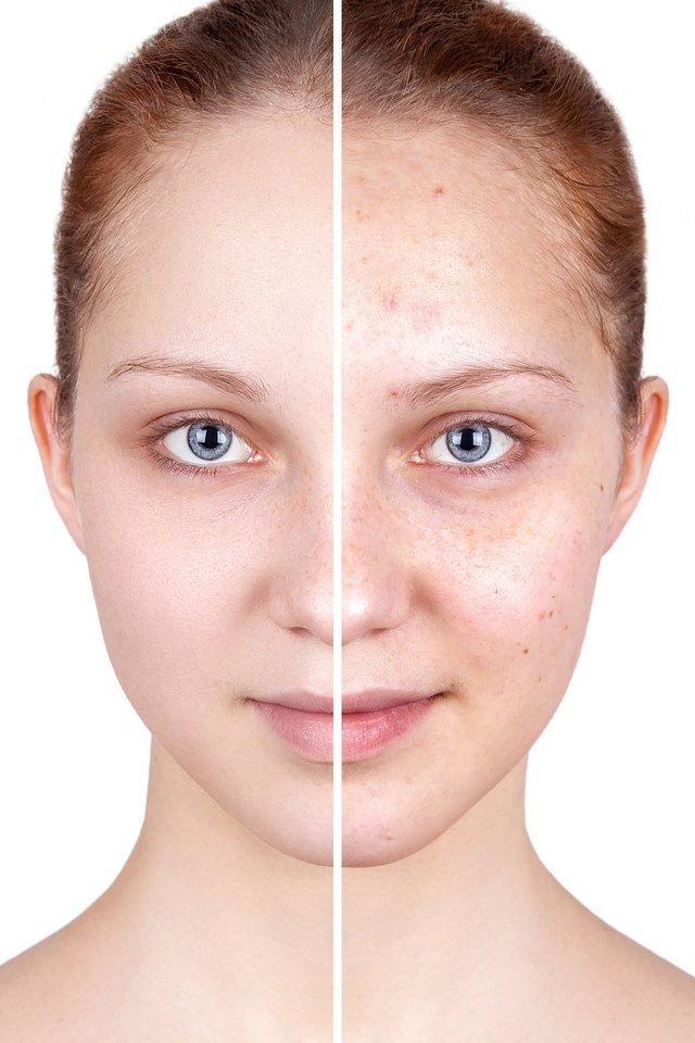 Teen Clean Facial - Greenwich CT