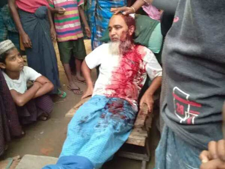 Imam in 'Minbya' Injured by Rakhine Extremist