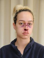 gebrochene Nase