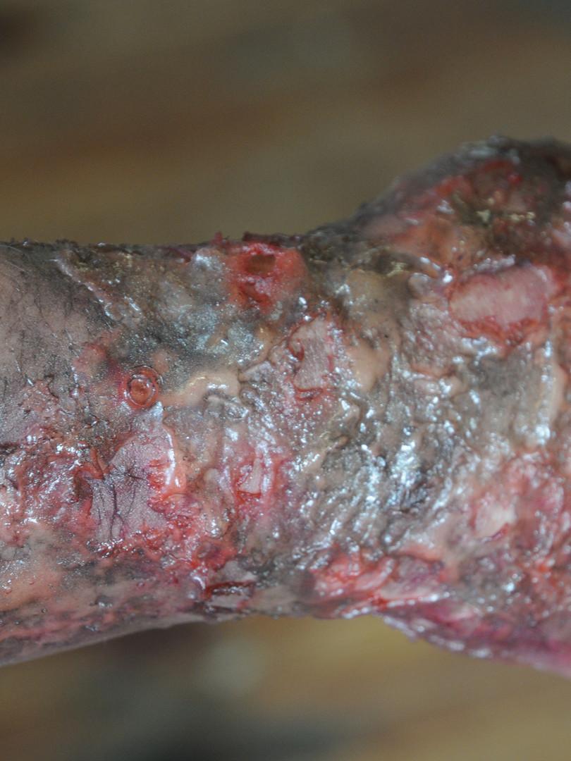Hautverbrennung
