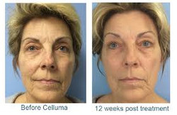 celluma 7