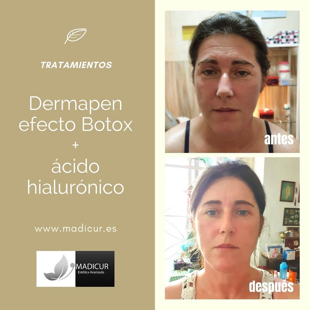 Tratamiento Dermapen Efecto Botox + Ácido Hialurónico