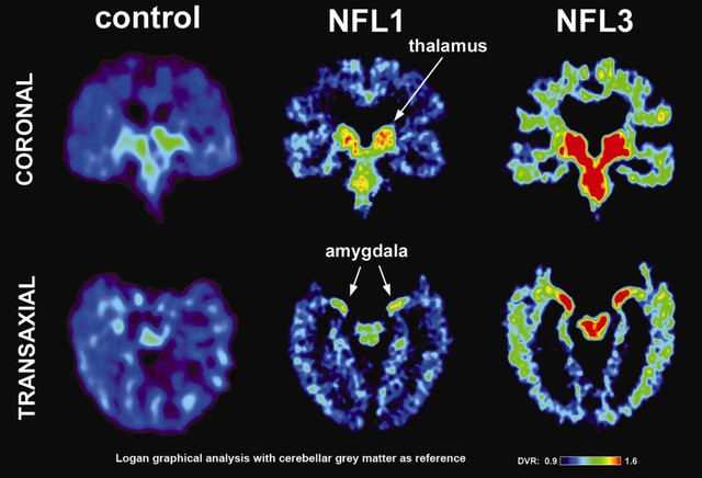 New Study Finds Brain Damage in Living Ex-NFL Players