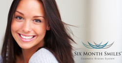 Book your 6 Month Smile Consultation