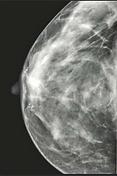 BreastMammogram.png