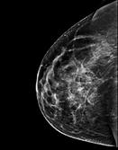 BreastMRI.png