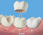 Dental crown.png