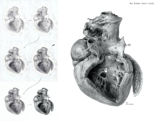 Max Brödel Heart Study