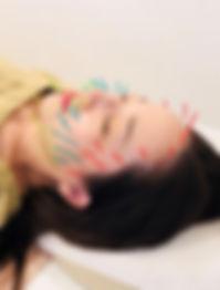 美容鍼hp5.jpg