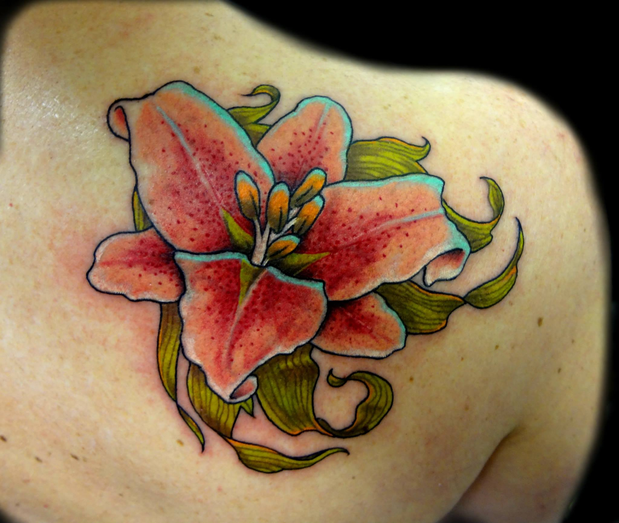 lilly - right shoulder