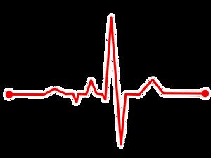 EKG-Kurve des menschlichen Herzens