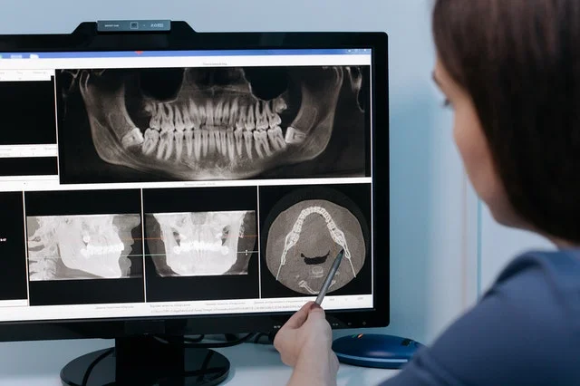 root canal treatment requires an x-ray of the mouth not abdominal region