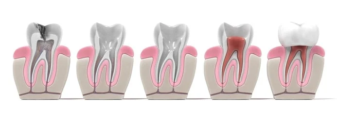 Tooth roots are not removed in RCT