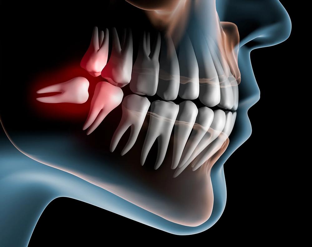 wisdom teeth extraction by Dr kumarswamy dental clinic in mumbai