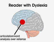 Dyslexia over-reliance on fewer brain functions
