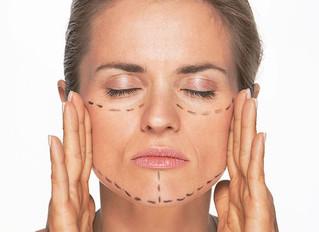 Sabe como funciona o Lifting Facial?