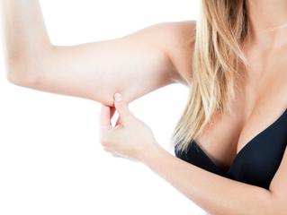 Entenda como funciona o Lifting de braço
