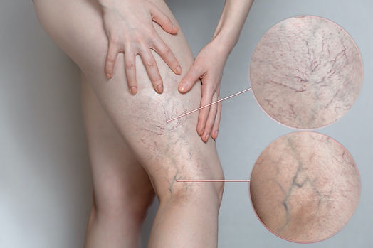 sclerotherapy-spider-vein-treatment-foot