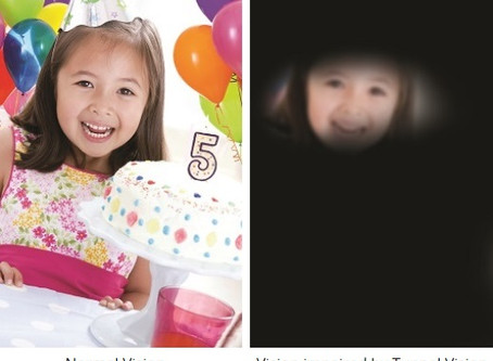 Common Eye Symptoms - Tunnel Vision