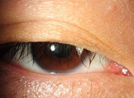 Common Eye Symptoms - Itchy Watery Eye