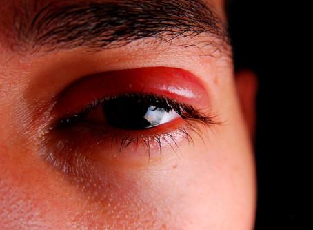 Common Eye Symptoms - Swollen Eye