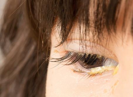 Common Eye Symptoms - Eye Discharge