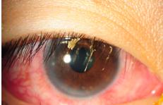 Common Eye Symptoms - Flaky Eyelid