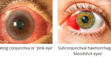 Common Eye Symptoms - Eye Redness