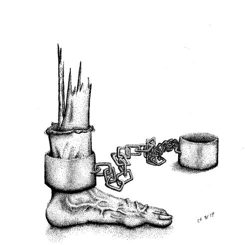 Unfortunate Foot