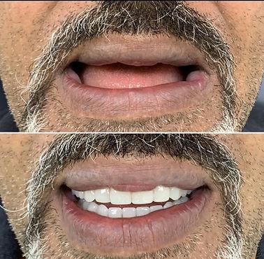 Fruängen Dental.jpg