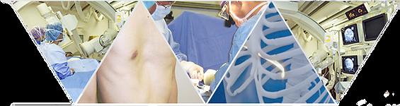 漏斗胸治療