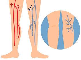 下肢静脈瘤の図