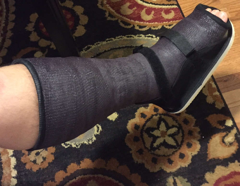 The Black Cast of Death......and cute little cast shoe