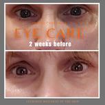 sMTS Anti-Wrinkle Eye Serum