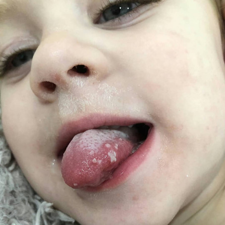 Everything you need to know about the cold sore virus and your baby
