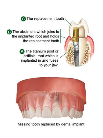 Tooth Replacement Diagram.jpg