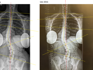 SCOLIOSIS TREATMENT FOR ADULTS