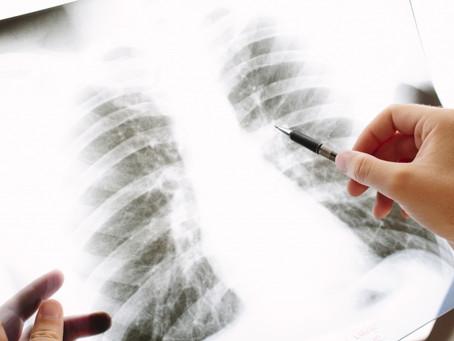 胸部レントゲン検査で写らない影がある 肺門部の肺がん
