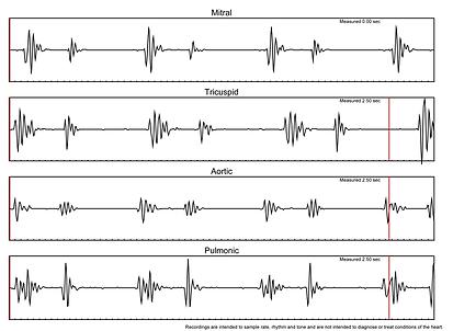 HSR Graph.png