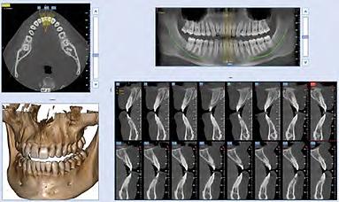 NewTom_5GXL_Diagnose_01.png