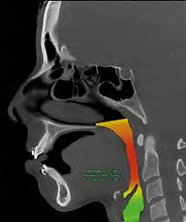 NewTom_5GXL_Diagnose_07.1.png