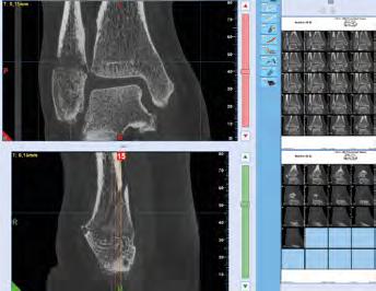 NewTom_5GXL_Diagnose_09.1.png
